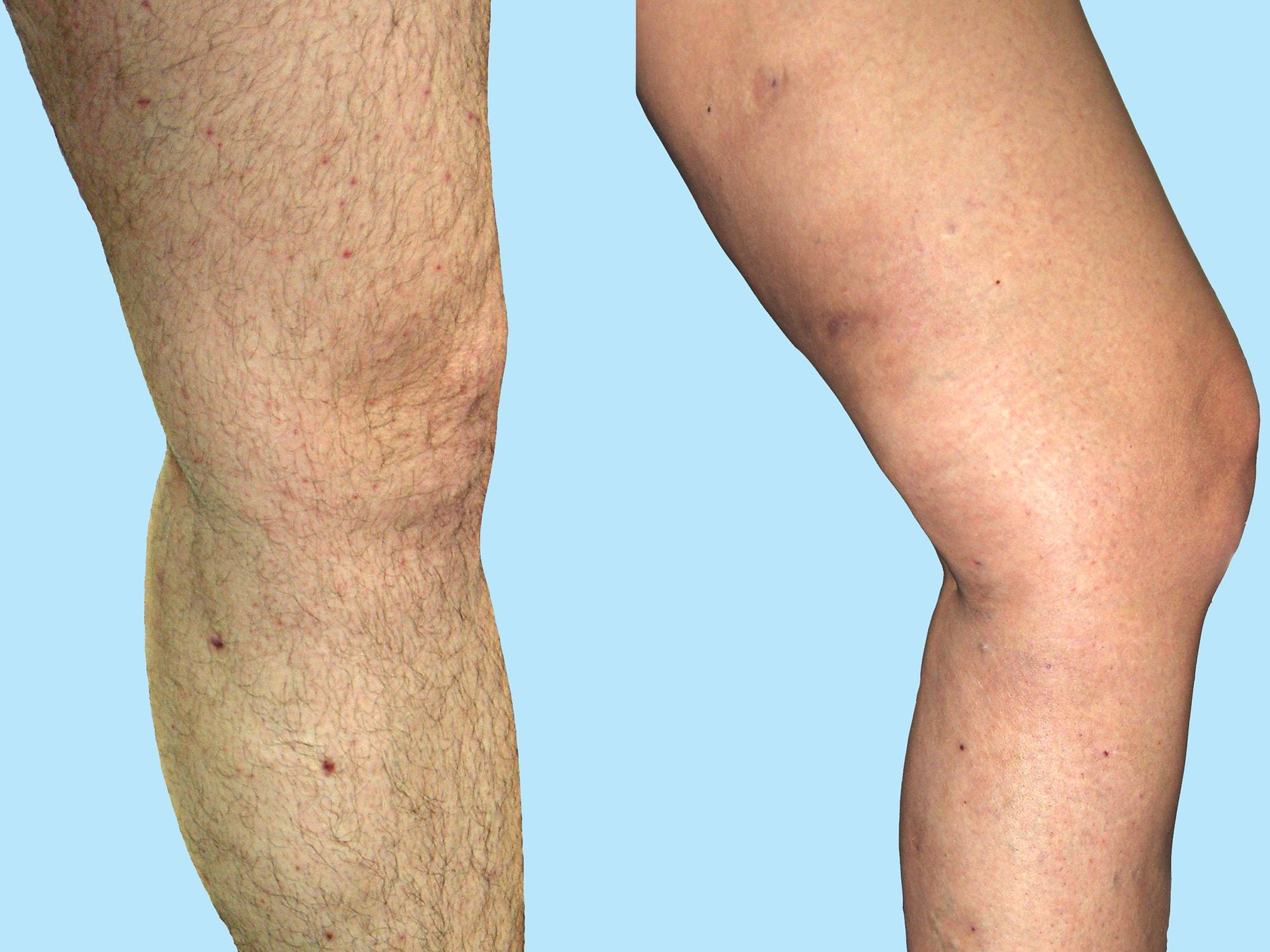 Tratamentul varicelor cu laser – fără durere și fără cicatrici